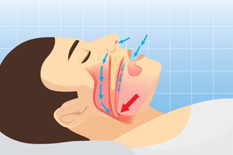 閉塞性睡眠時無呼吸症候群(OSA)